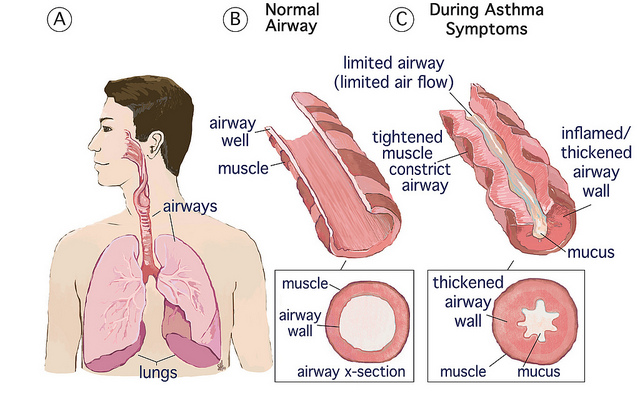 Can mold cause asthma in adults