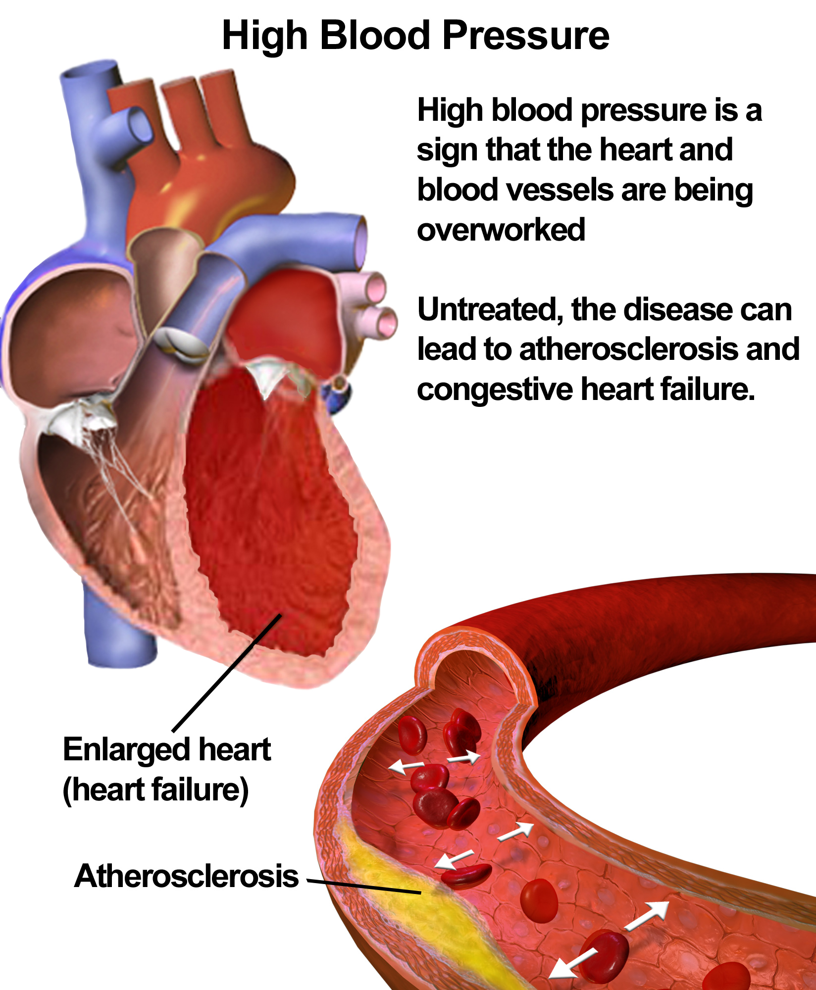 can xarelto cause high blood pressure / how do you diagnose, Skeleton