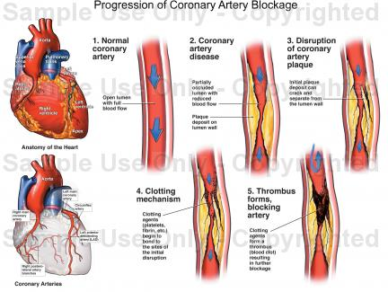 Coronary Artery Sclerosis Risk Factors And Signs And. Left Untreated Signs. Chicken Pox Signs. Softball Signs. Half Happy Half Signs Of Stroke. Military Signs Of Stroke. Sinus Drainage Signs. Remedies Signs Of Stroke. 1st January Signs