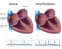 atrial-fibrillation-