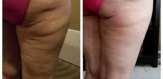 Smoothing Cellulite