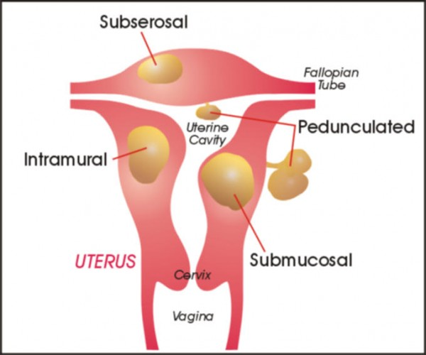 uterus2