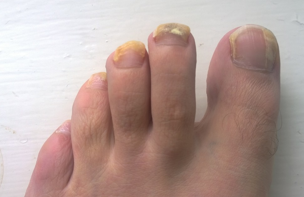 Keep Your Foot Healthy Against Nail Fungus - Doctor Tipster