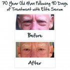 elite serum before and after