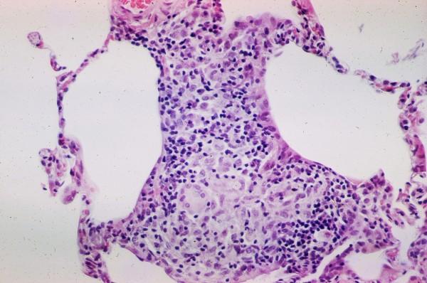 Sarcoidosis 2