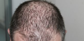 JAK Inhibitors Drugs Restores Hair Growth in Patchy Hair Loss