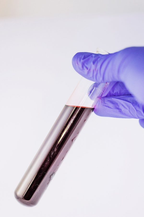 New BioSensors Can Speed Up Blood Diagnostic Methods