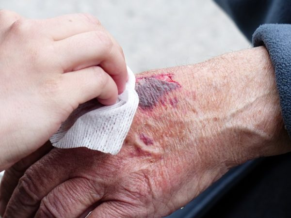 Wound Healing with Cold Plasma Therapy