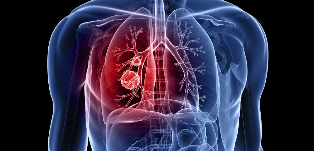 PD-1 Protein Marker Can Predict Lung Cancer Survival