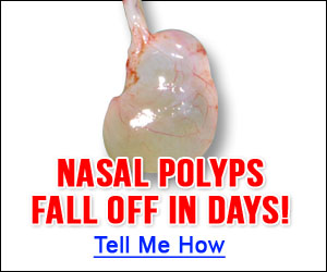 Nasal Polyps And Its Treatment Options Doctor Tipster