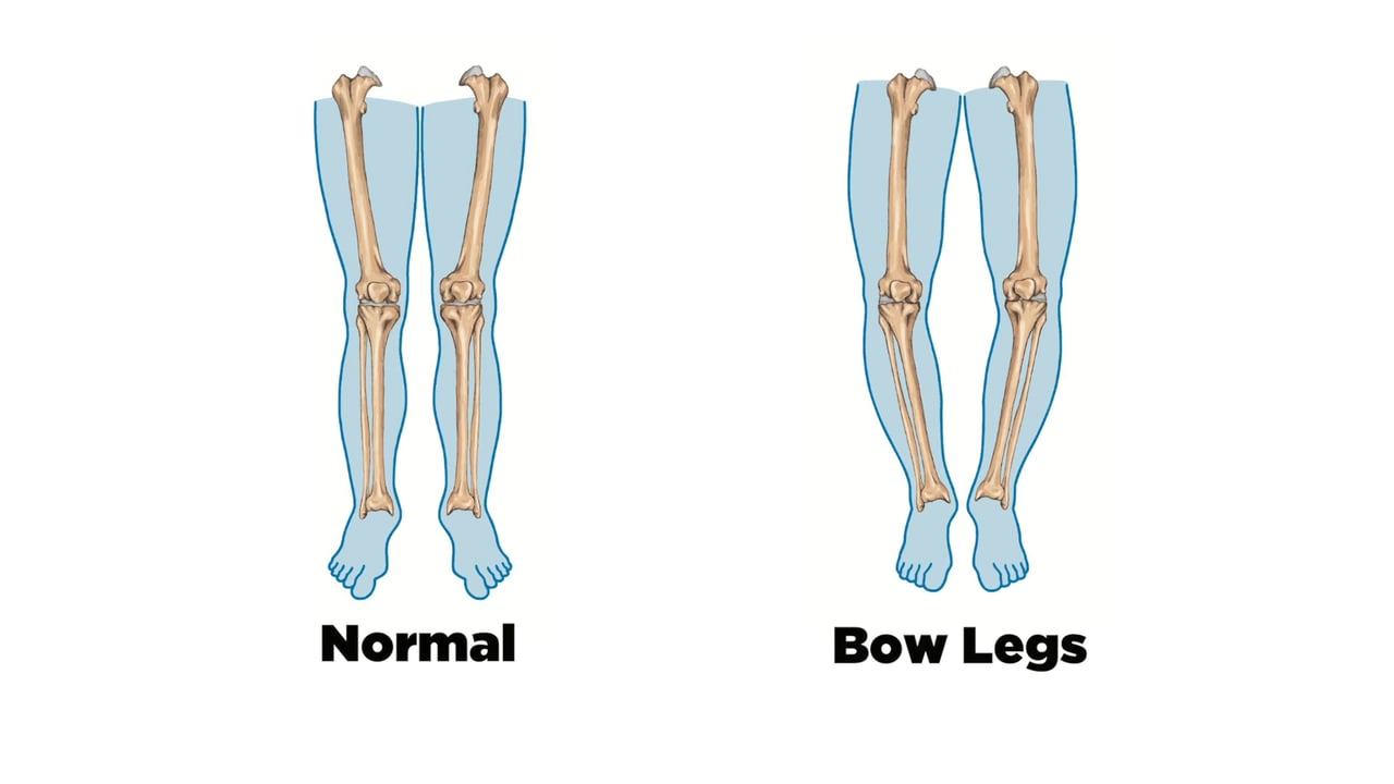 bow-legs