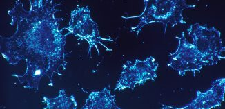 CD36 Accelerates Cancer Metastasis