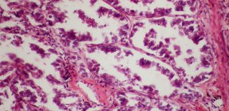 Cancer Metastasis: New Cell Mechanism Discovered by Scientists